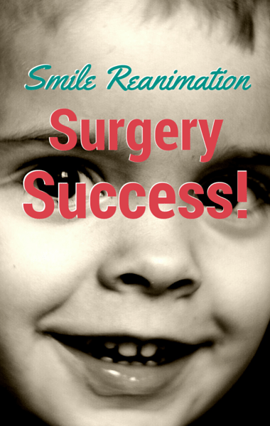Drs: Smile Reanimation Surgery Success + Makeover To Look Younger