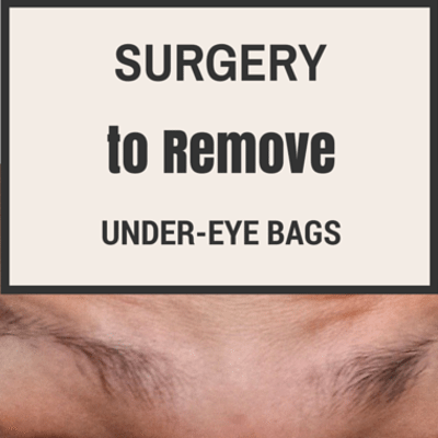 surgery-remove-under-eye-bags-