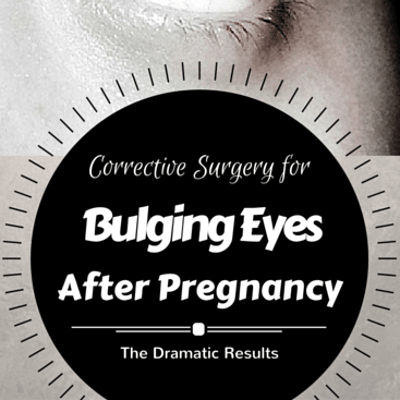 The Drs: Graves' Disease & Bulging Eyes + Corrective Eye Surgery