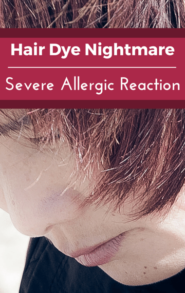 Drs: Hair Dye Allergic Reaction + Kristin Cavallari Baby Formula
