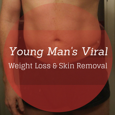Drs: Viral Weight Loss Story & Skin Removal, Body Lift Surgery