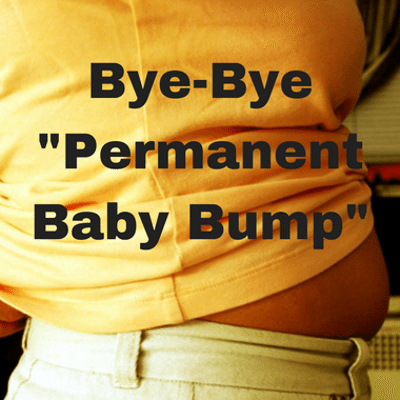 The Drs: Permanent Baby Bump + Hernia Repair & Young Albino Model
