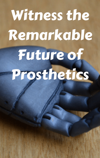 Drs: Advanced Prosthetic Allows Amputee To Move & Feel Arm Again
