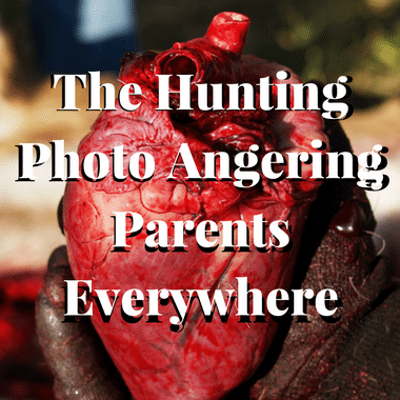 Drs: Controversial Hunting Photo + What Is Urine Skin Therapy?