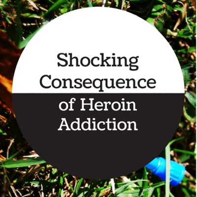 The Drs: Heroin Addict Becomes Amputee After Relapse + Recovery