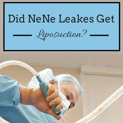 Has NeNe Leakes Had Liposuction? 2 Nose Jobs? Tummy Tuck? {{WOW}}