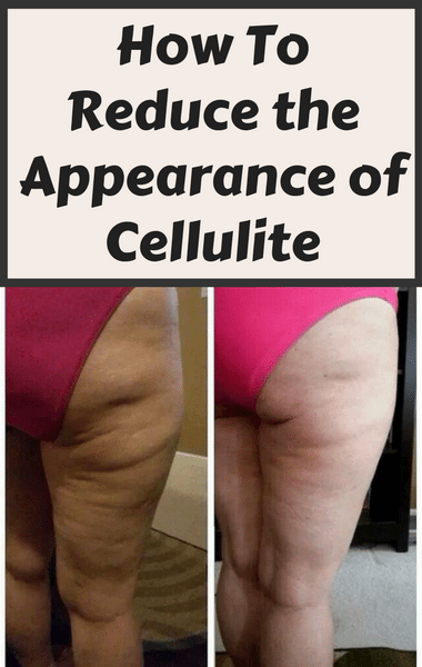 Dr Oz: Reduce Cellulite + Does Weight Loss Get Rid Of Cellulite?